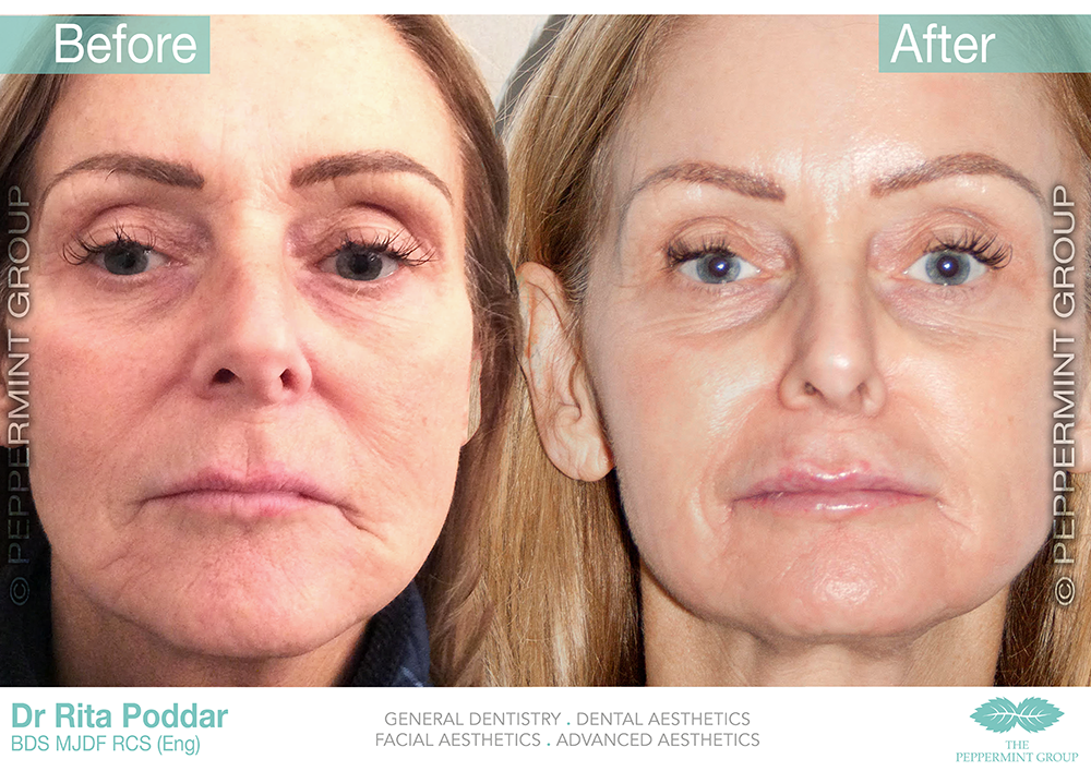 Before and After For The ZO Deep Peel page