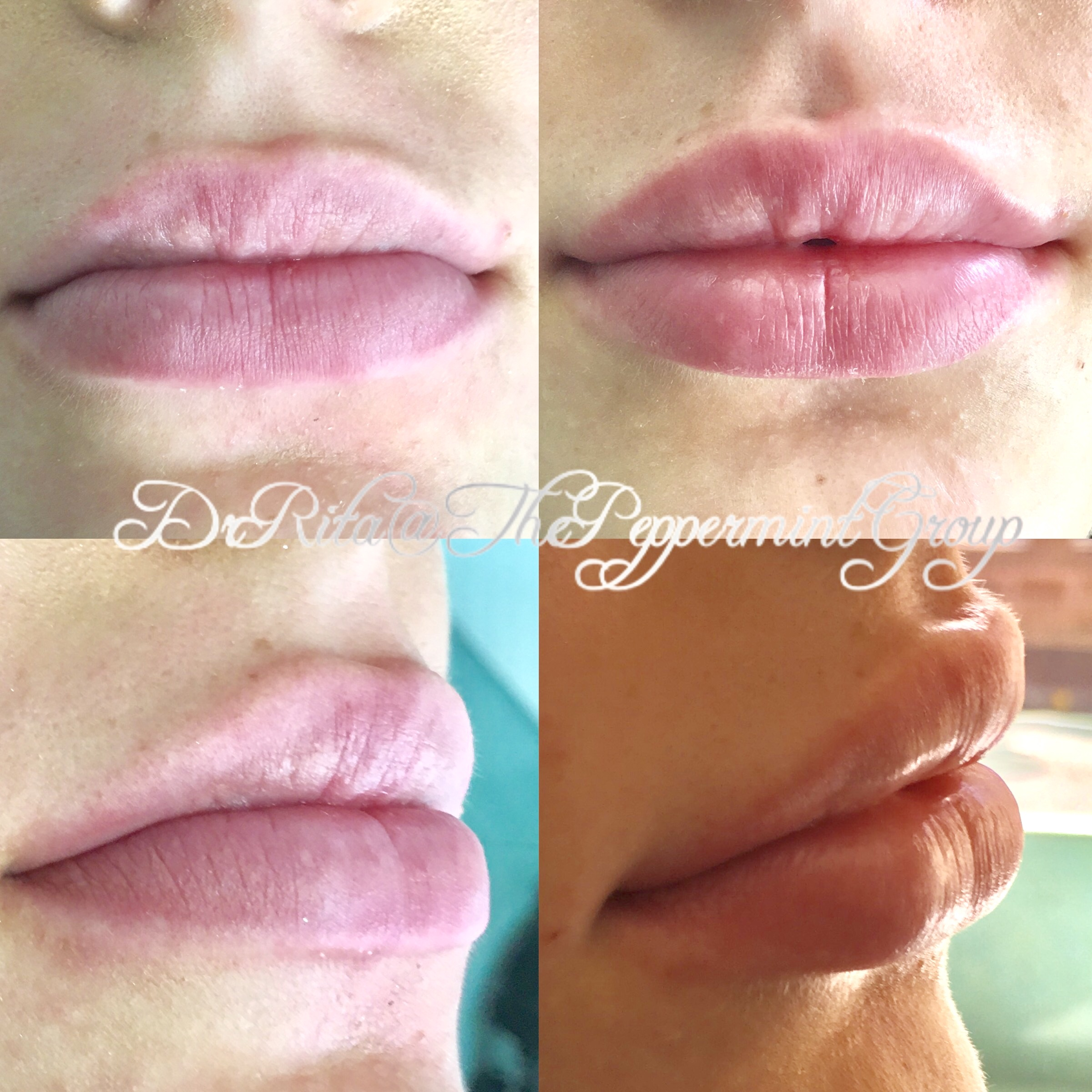 Facial Filler Page - Lip Augmentation