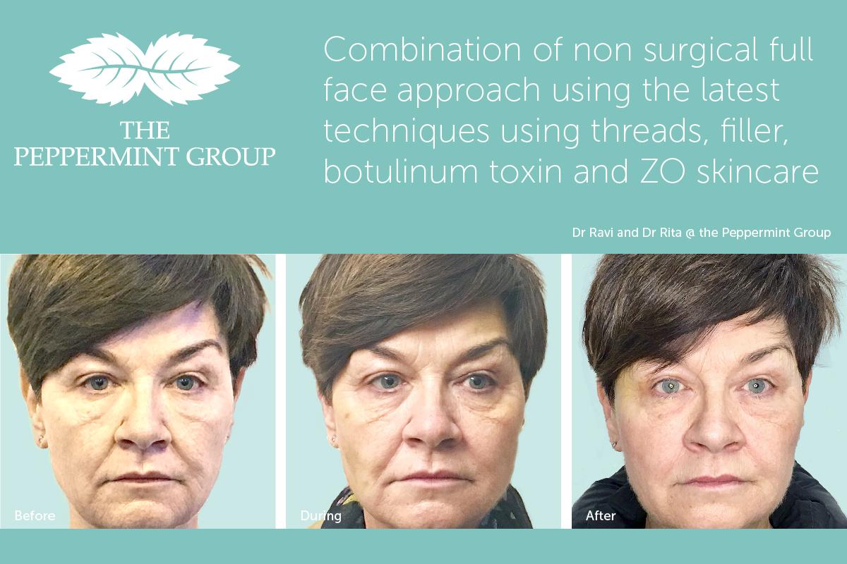 Facial Filler Page - Non Surgical Face Lift