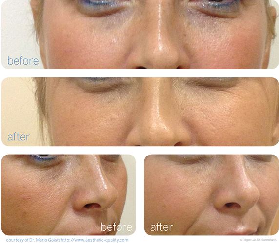 PRP Facial Rejuvenation Page Before and After copy