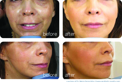 PRP Facial Rejuvenation before and after