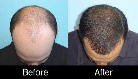 PRP-hair-restoration male