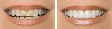 Restore chipped teeth