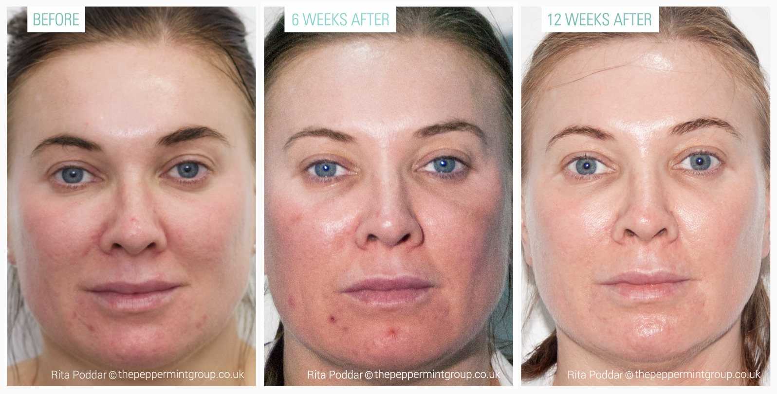 ZO Page - ZO Controlled depth peel before and after